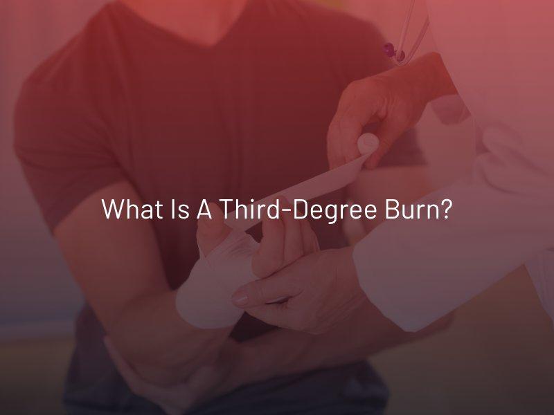 What is a Third-Degree Burn?